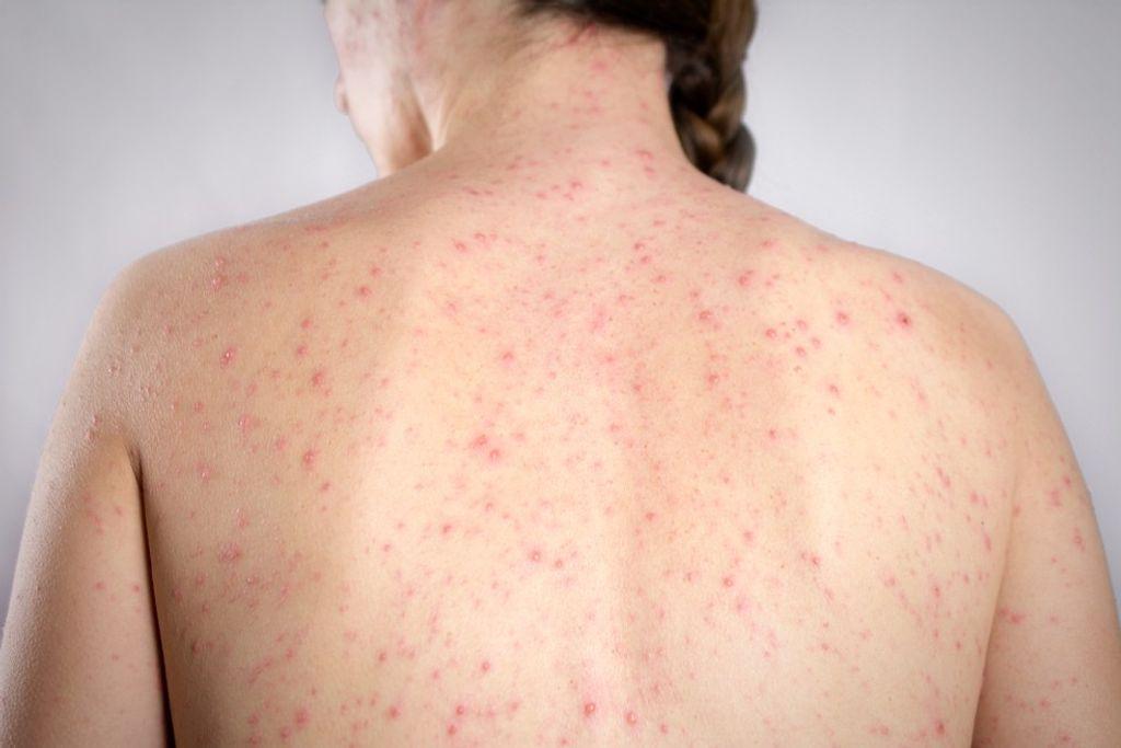 Manchas vermelhas pelo corpo são sintoma de sarampo — Foto: G1/Divulgação
