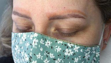 Mulher com 4 sobrancelhas faz procedimento de correção em SC