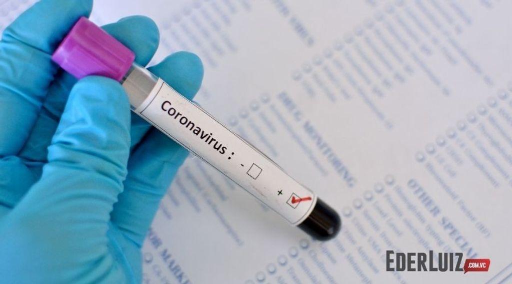 Joaçaba tem 201 casos ativos de Covid-19
