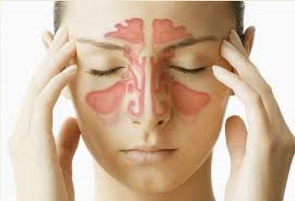 rinite sinusite
