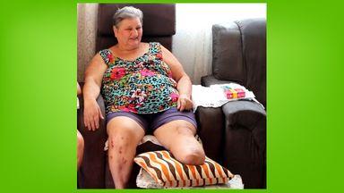 Moradora de Herval pede ajuda para comprar prótese após ter perna amputada