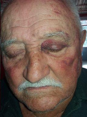 Fotos tiradas pela família, e autorizadas a serem divulgadas mostram as agressões